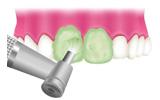 歯面のクリーニング